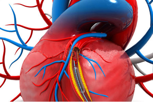 Coronary Artery Disease Treatment